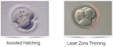 Laser Assisted Hatching