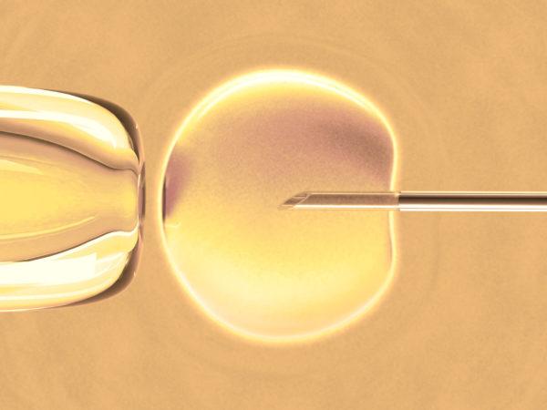Intracytoplasmic Sperm Injection, ICSI